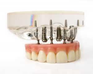 Teeth Implantation Model In Christchurch