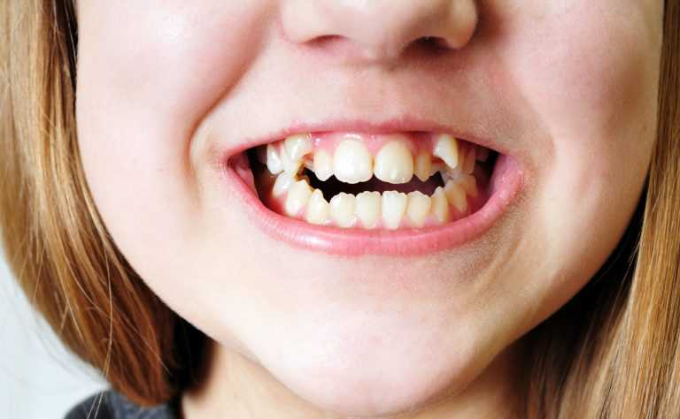 How the UK is Breaking Away from the Bad British Teeth' Stereotype