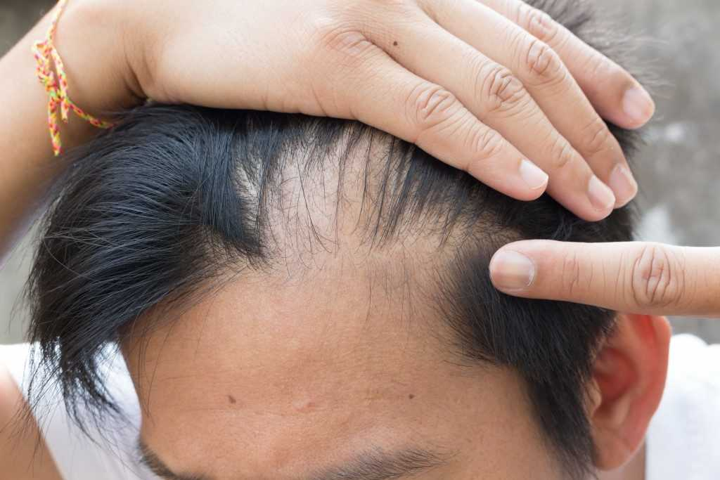 Hair Loss Case