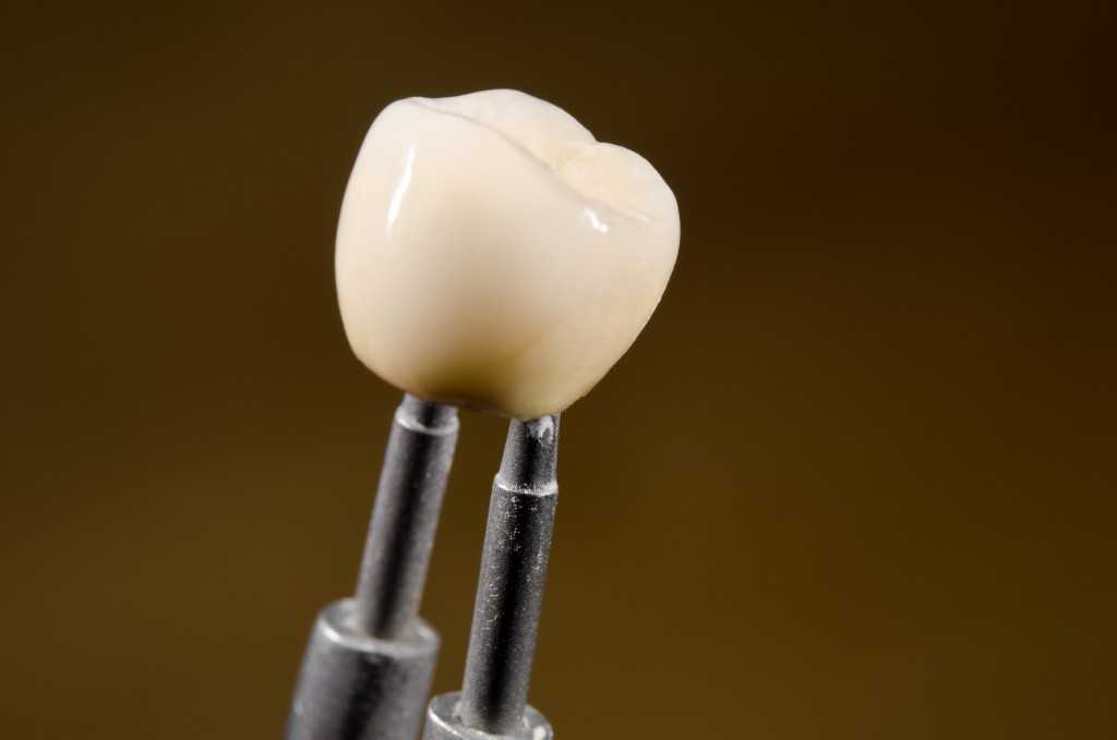 a close look at the structure of dental implant