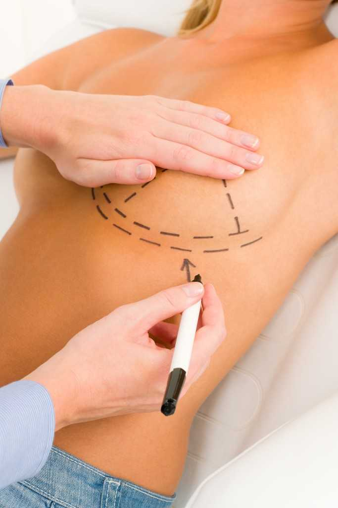 Surgeon Drawing Lines On Patient's Breast