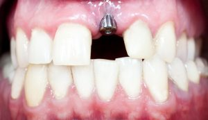 a close-up look at the foundation of a dental implant