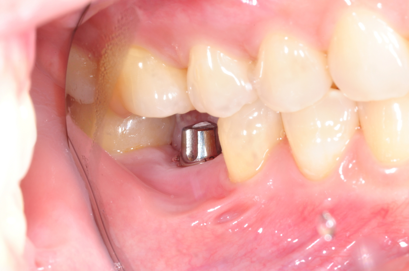 Dental Implant firmly intact