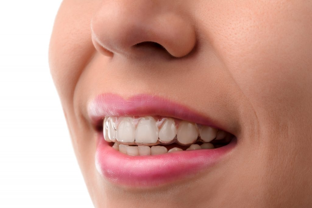 Picture of a woman's white teeth
