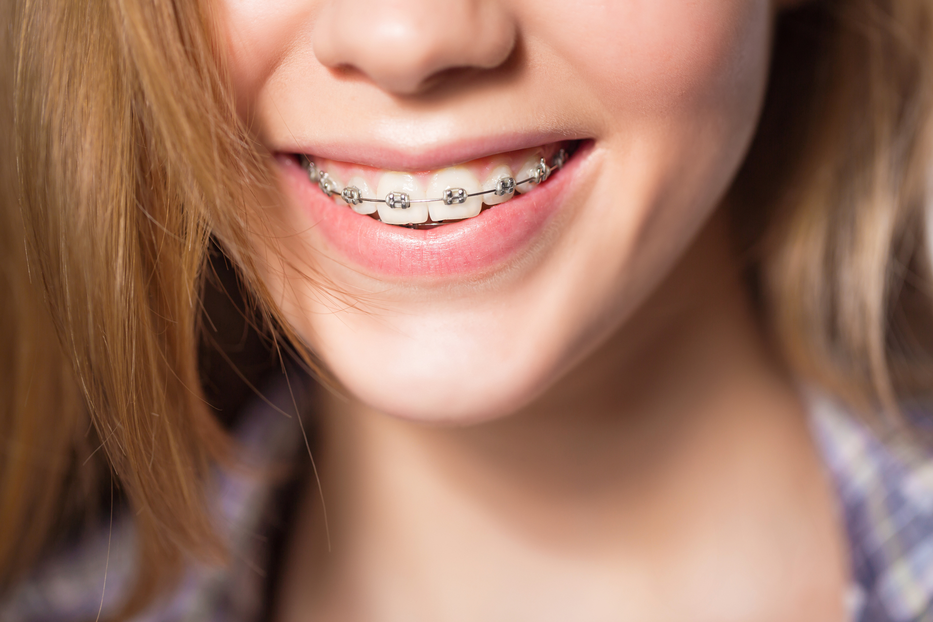 Woman wearing braces