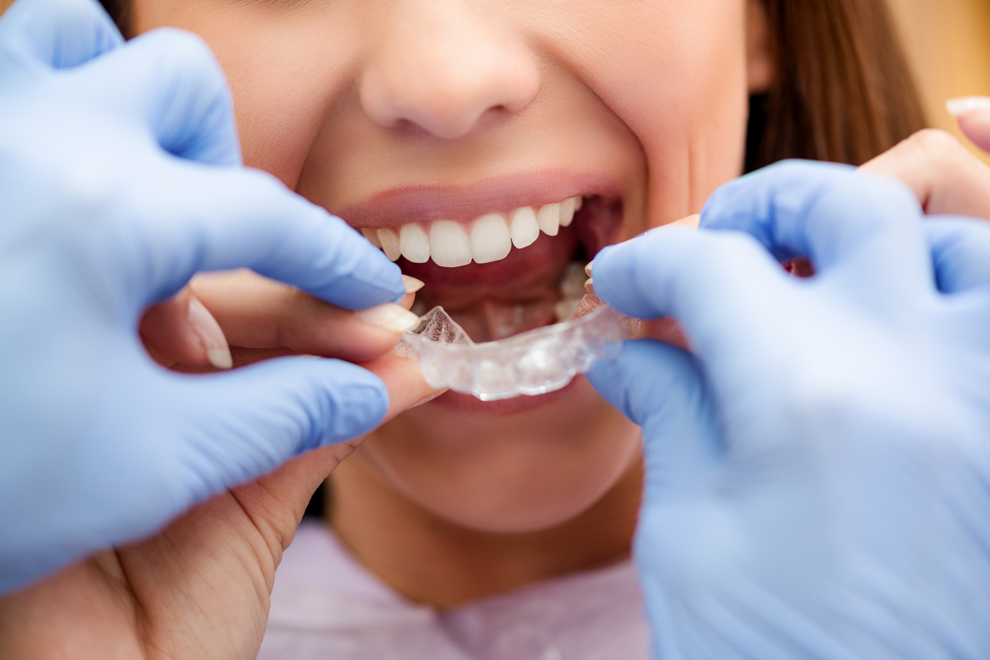 Dentist putting on clear braces for patient