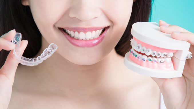 Woman holding an invisible braces and a denture