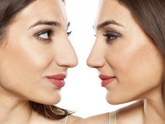 pre-surgery and post-surgery comparison concept