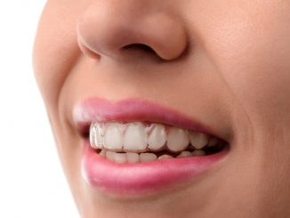 Woman wearing clear braces