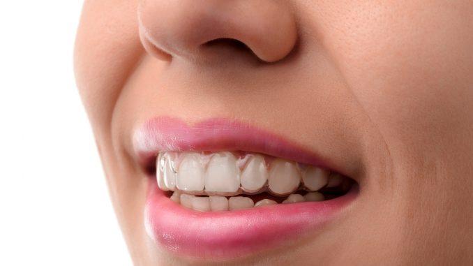 Woman wearing clear braces