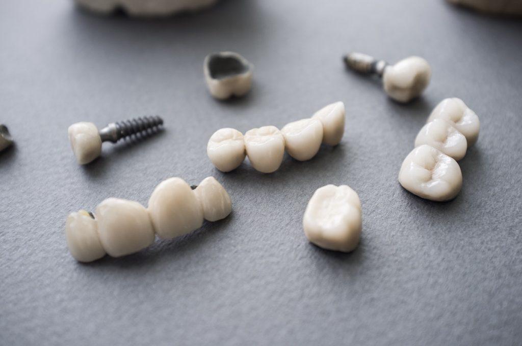 dental implant sample