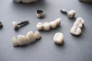 dental implant sample