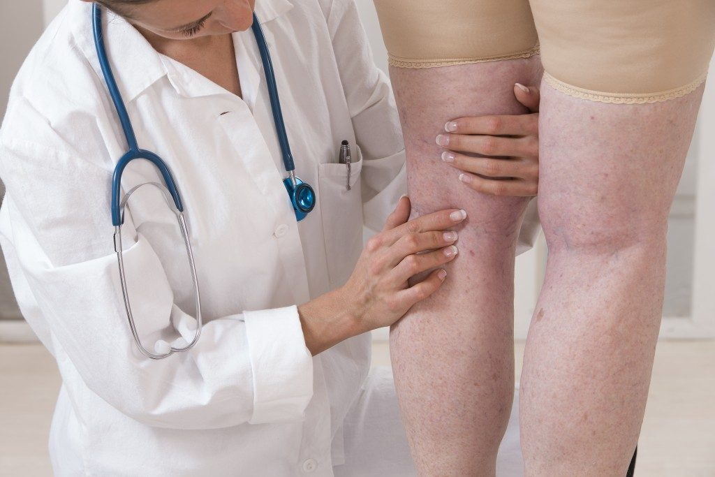 Doctor checking patient's swollen leg