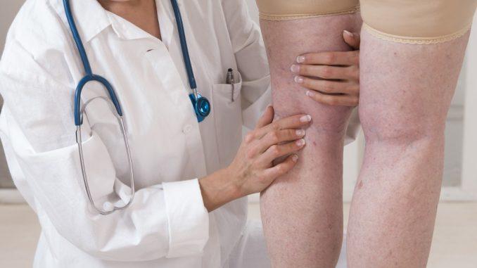 Doctor checking patient's swollen leg