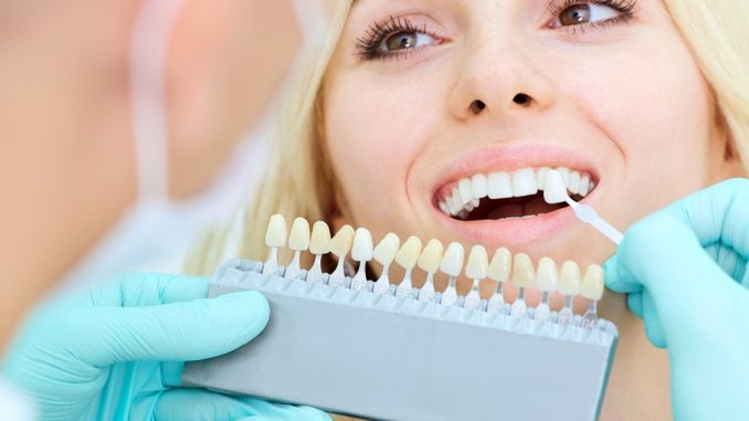 Woman getting dental implants