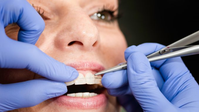 woman having her teeth and braces cleaned