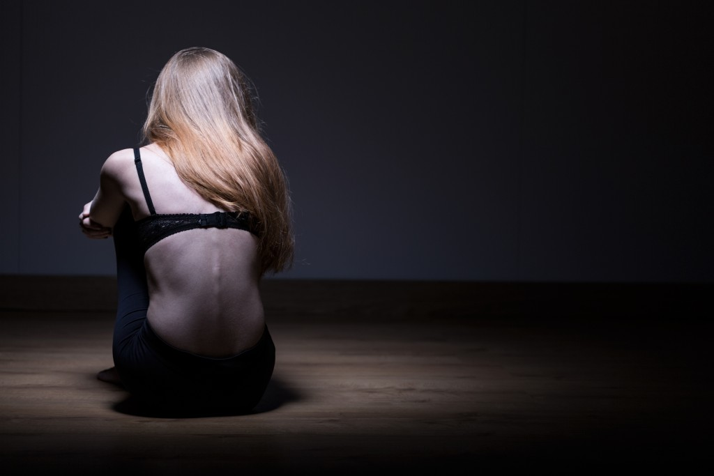 photo of a girl about faced; suffering anorexia