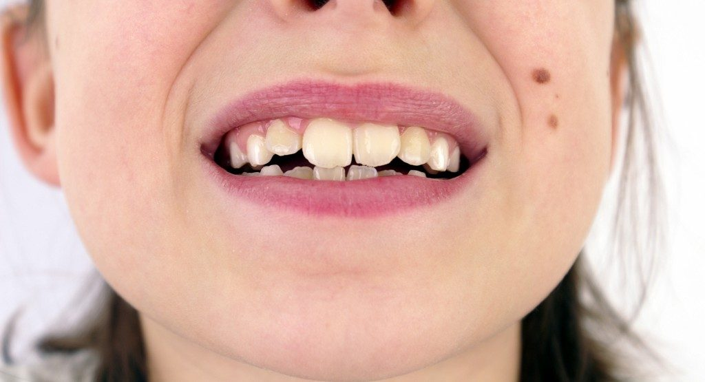 Causes of Crooked Teeth