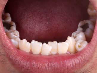 Teeth Care and Preventing Plaque
