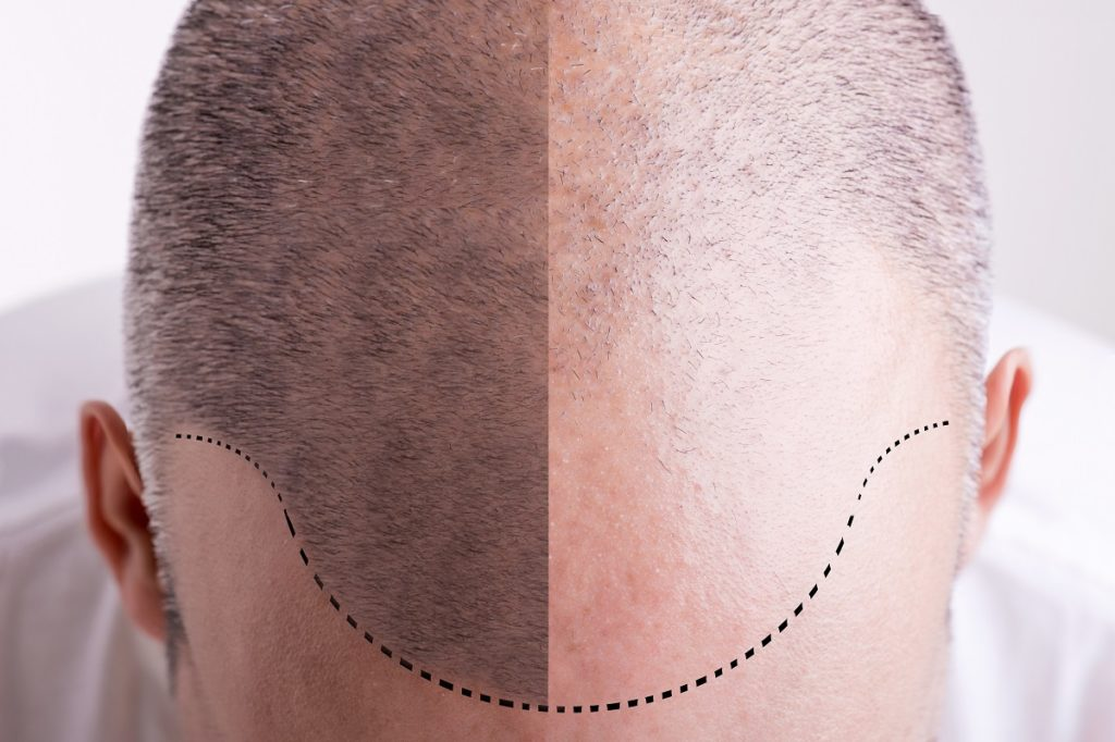 Man's head balding