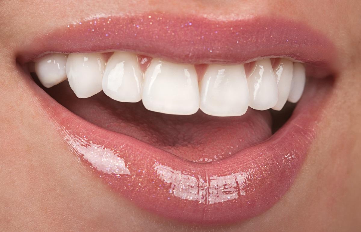 woman's white teeth