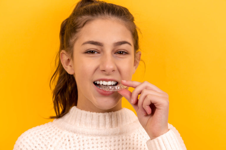 Have you heard of Invisalign?